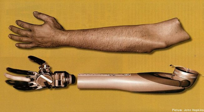 Prótese de braço mecânico pode ser controlado pelamente